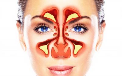 ▷Acupuntura para problemas de sinusitis: Cómo funciona, Estudios, Puntos, Más✌